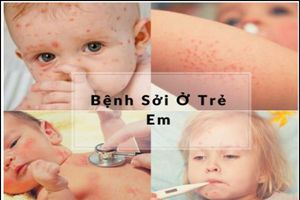 Hỗ trợ điều trị bệnh sởi ở trẻ em bằng sản phẩm thảo dược an toàn và hiệu quả