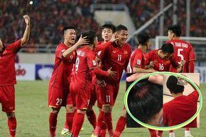 Anh Đức bị chấn thương vùng đầu vì ăn mừng Việt Nam vô địch, hé lộ lý do giờ mới dám nói