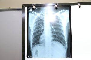 Cực kỳ hiếm gặp: Nam thanh niên có tim bên phải, phủ tạng nằm đảo ngược hoàn toàn