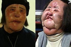 'Thảm họa thẩm mỹ' xứ Hàn qua đời ở tuổi 57: Dùng cả tuổi thanh xuân để 'dao kéo', tự mua dầu ăn về tiêm lên mặt