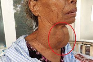 Đeo khối u 'khổng lồ' ở cổ hơn 30 năm, cụ bà rơi vào tình trạng khó thở, nguy hiểm