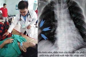 Bệnh nhân bị tắc mạch phổi, cấp cứu sau khi đi vệ sinh đứng không vững