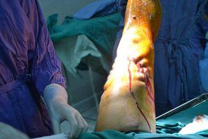 Dốc toàn lực cứu người đàn ông bị lưỡi dao máy cắt chè 'chém' gần đứt chân
