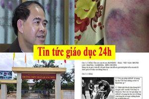Tin tức giáo dục 24h: Chưa rõ lý do nam sinh đánh thầy đến nhập viện