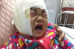 Bé gái bỏng nặng do ngã vào bếp lửa cầu cứu