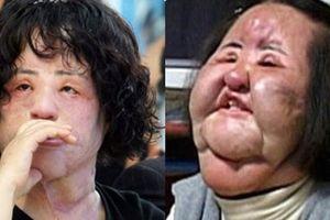 Han Mi Ok 'Thảm họa thẩm mỹ' xứ Hàn qua đời ở tuổi 57