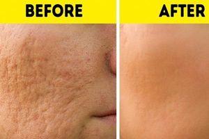 Áp dụng 6 bí quyết này, sẹo rỗ hay vết thâm do mụn nặng đến mấy cũng bị xóa mờ hoàn toàn