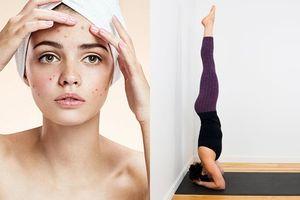 Chẳng cần dùng mỹ phẩm bạn vẫn có thể đánh bay mụn trứng cá bằng 4 tư thế yoga siêu đơn giản