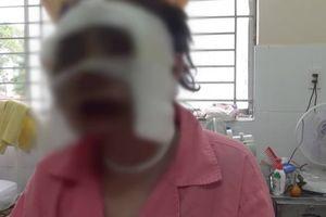 Công an huyện Củ Chi ráo riết truy bắt kẻ tạt axit cô gái sắp cưới