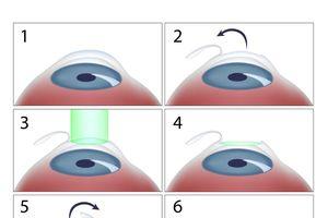 Nếu có ý định phẫu thuật mắt bằng laser, bạn cần biết những thông tin này