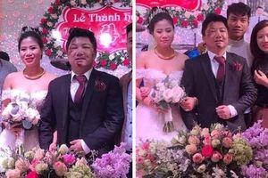 Quá chén trước ngày cưới, chú rể bị ngã sưng húp mặt nhưng vẫn cười tươi cạnh cô dâu