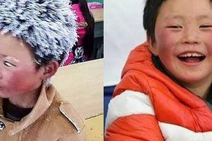 Mới năm ngoái sống nghèo khó, giờ đây, cậu bé có mái tóc băng tuyết bất ngờ 'đổi đời' ở nhà cao cửa rộng