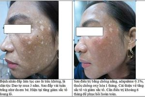 Quý bà nhập viện với da mặt biến dạng, loang lổ vì đắp lá làm trắng
