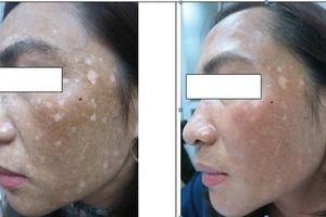 Đắp lá trầu không trị nám, da mặt người phụ nữ biến dạng, loang lổ