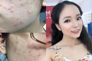 Kiên trì làm cách này, nàng 9x đã trị mụn thành công, 'lột xác' thành hot girl với làn da sáng bóng mịn màng