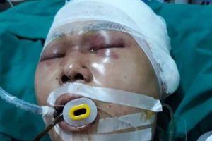 Mẹ trình báo con trai bị đánh chấn thương não ngay cạnh nhà