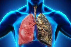 Phát hiện ung thư phổi sau 10 ngày ho khan không khỏi