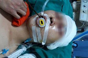 Hà Nội: Học sinh cấp 3 chấn thương sọ não vì bị đánh hội đồng ngay trước cửa nhà