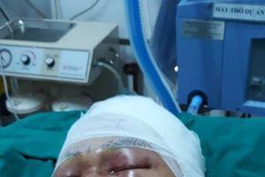 Nam sinh bị đánh chấn thương sọ não ngay trước cổng nhà
