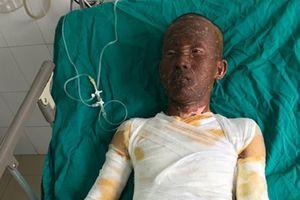 Bệnh nhân bị bỏng từ thuốc pháo tự chế gia tăng