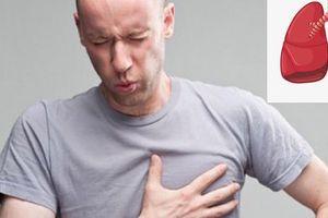 Dấu hiệu những cơn ho 'chết người' cảnh báo ung thư phổi