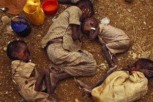 Cuộc sống đói khổ và cùng cực của trẻ em Yemen