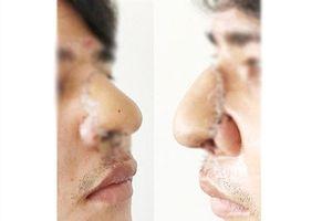 Đầu mũi bị chém bay được tái tạo ''thần kỳ' nhờ da cẳng tay