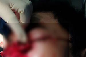 Nổ bình ga mini khi nấu cơm, bệnh nhân vỡ nhãn cầu mắt, dập nát mũi