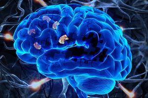 Phát hiện hiệu quả trị bệnh Alzheimer của loại thuốc ngừa đột quỵ