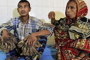 'Người cây' Bangladesh phải nhập viện vì sức khỏe sa sút