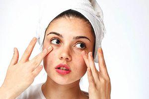 Tại sao bạn đã dưỡng ẩm đúng cách mà làn da vẫn khô ráp, căng rát?