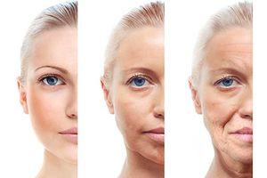 Bật mí bí quyết ngăn ngừa lão hóa da cho phái đẹp