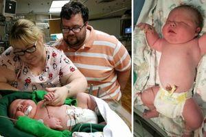 Bác sĩ 30 năm tay nghề 'sốc nặng'khi đỡ đẻ cho một trẻ sơ sinh khổng lồ nặng gần 7kg