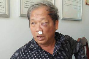 Đã xác định được đối tượng hành hung nhà báo tại Kon Tum