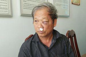 Phóng viên VTV tiết lộ lý do bị hành hung ngay giữa quán ăn