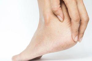 Những cách điều trị nứt gót chân tại nhà hiệu quả