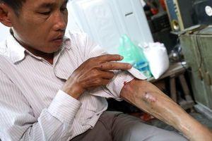 Cuộc sống mưu sinh ngày sát tết của những bệnh nhân chạy thận ở Hà Nội