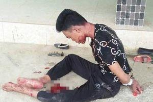 Nghệ An: Chồng nguy kịch ngồi ôm thi thể vợ trong căn nhà khóa trái