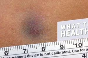 Vết bầm tím trên da người phụ nữ này suốt bao năm hóa ra là dấu hiệu cảnh báo bệnh cực nguy hiểm!