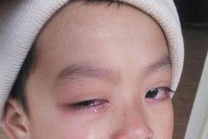 Làm rõ vụ cô giáo đánh học sinh nguy cơ mù mắt