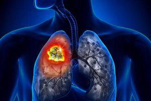 Phát hiện ung thư phổi sau khi ho khan lâu ngày không khỏi