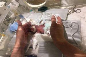 Em bé sinh non cân nặng bằng củ hành tây đã được xuất viện