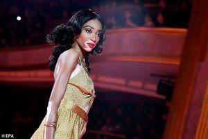 Siêu mẫu bạch biến Winnie Harlow hút hồn tại Paris Fashion Week