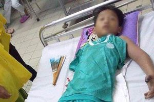 Bé trai 11 tuổi bị rắn hổ mang cắn nguy kịch khi ra đồng mò cua