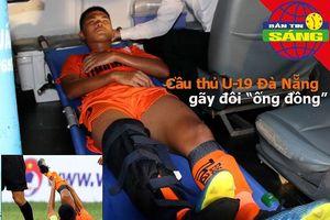 Cầu thủ U-19 Đà Nẵng gãy chân, Treo còi 3 trọng tài V-League
