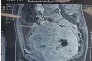 Phẫu thuật cắt bỏ thành công khối u trực tràng kích thước lớn