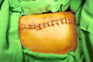 Cắt khối u nặng 2kg dính suốt 12 năm trên người đàn ông