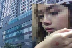 Người đàn ông cưỡng hôn nữ sinh trong thang máy lại vắng mặt tại buổi xin lỗi