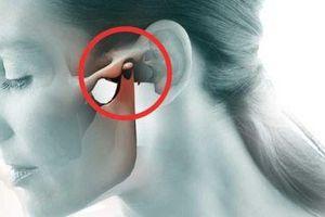 7 triệu chứng ù tai mà bạn không nên bỏ qua