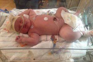 Mỹ: Bé gái sơ sinh nặng nhất bang New York
